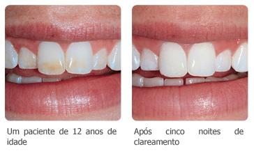 Opalescence Clareador Dental Curitibana A Maior E Melhor Dental