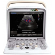 ULTRASSOM VETERIN�RIO DIGITAL - ECO - DOPPLER COLOR DIGITAL - CHISON Q5