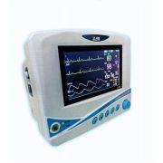 Monitor Multiparametros de Sinais