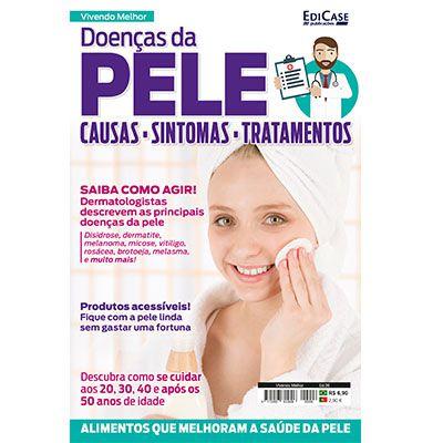 Vivendo Melhor Ed. 06 - Doenças da Pele  - EdiCase Publicações