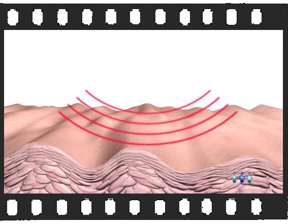 Radiofrequência - Versão Completa de 2 Minutos de Duração.   - Ensinando ao Paciente