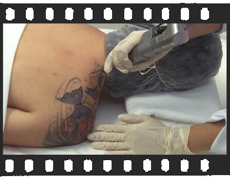 Remoção de Tatuagens - Versão Completa de 2:30 Minutos.