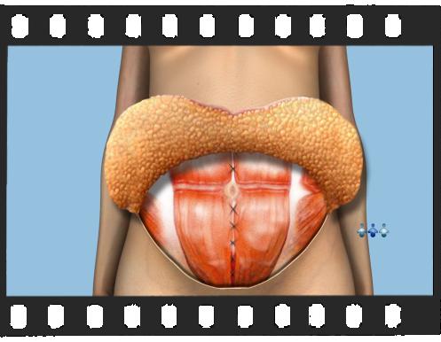 Abdominoplastia - Versão Completa de 6 Minutos de Duração.
