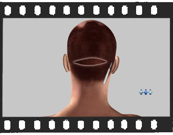 Cirurgia Capilar - Versão Completa de 4 Minutos e 30 Segs