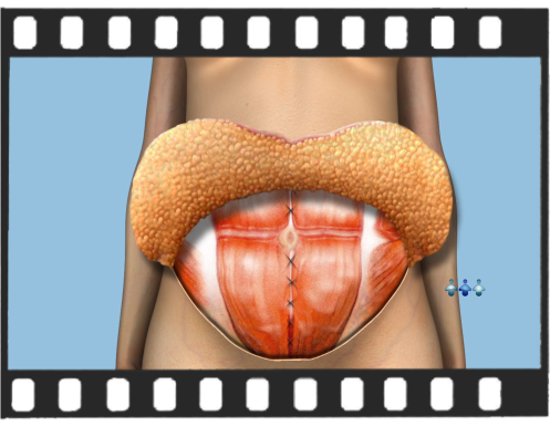 Abdominoplastia - Versão Instagram/ Whatsapp de 1 Minuto.