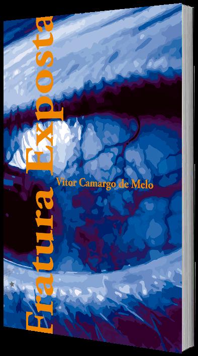 Fratura Exposta de Vitor Camargo de Melo