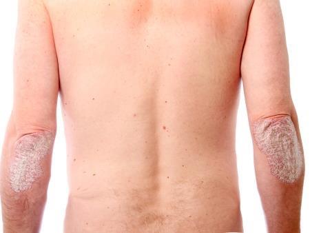 Loção para Dermatites e Psoríase 100 ML
