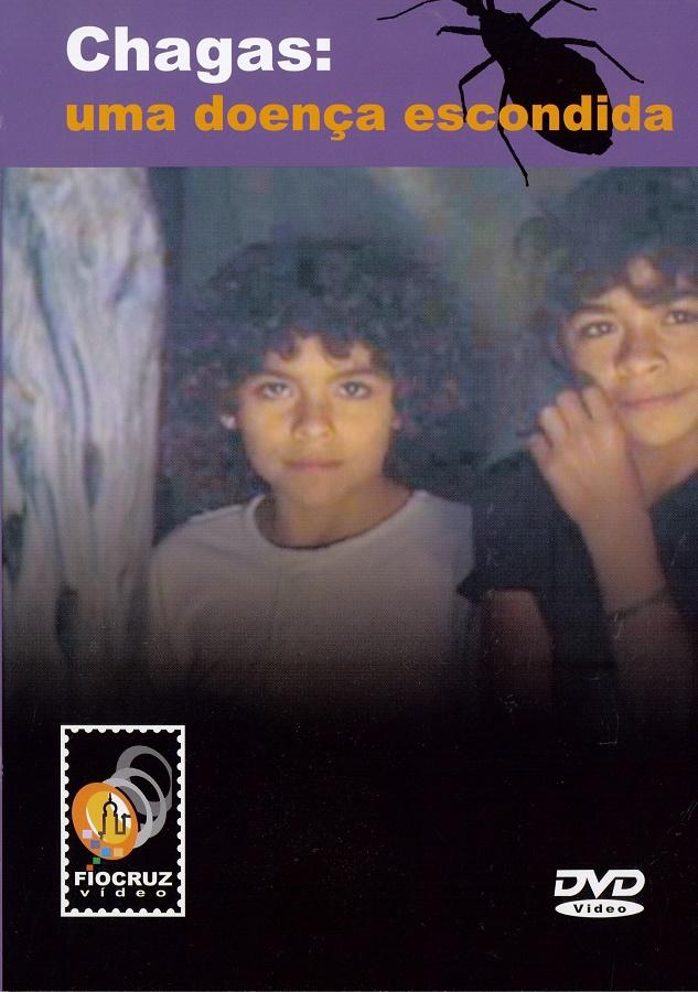 #DVD - Chagas: uma doença escondida  - Livraria Virtual da Editora Fiocruz