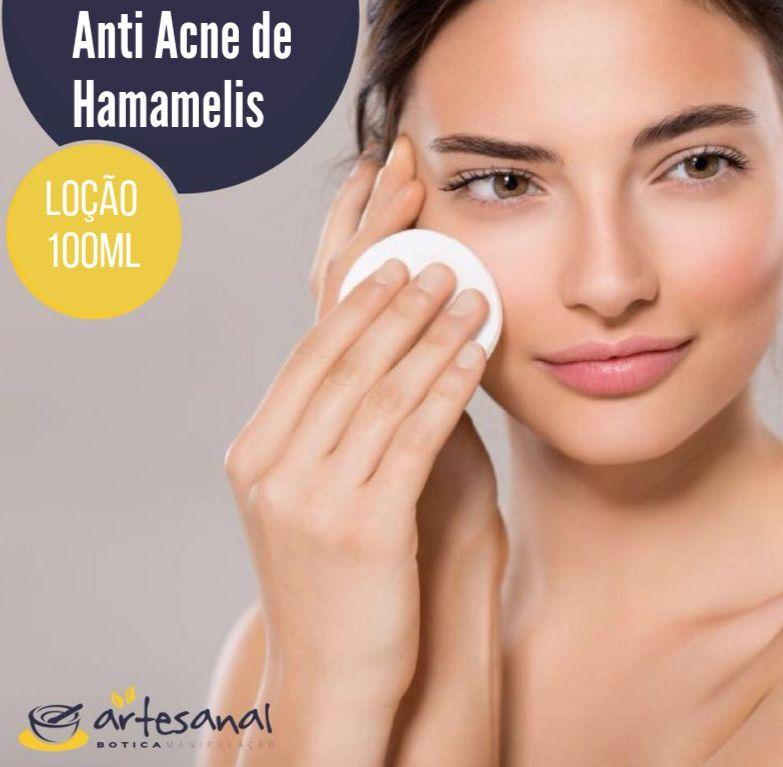 Loção Adstringente Anti Acne de Hamamelis - 60ml