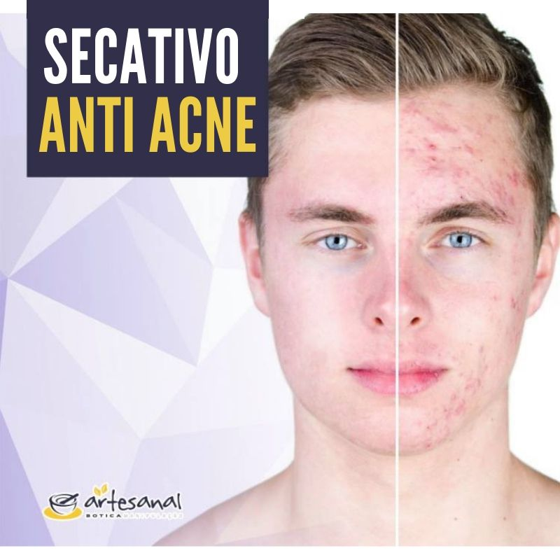 Gel Secativo Anti Acne - 15g
