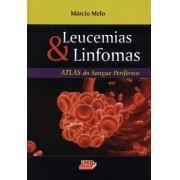 Leucemias & Linfomas - Atlas do Sangue Periférico