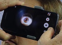 Iridophoto Comum para Smartphone