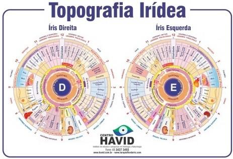 Mapa A3 Topografia Irídea  - Digital