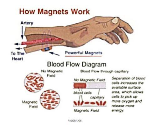 TMS – Estimulação Magnética Transcraniana