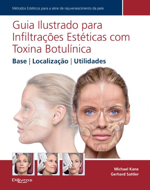GUIA ILUSTRADO PARA INFILTRAÇÕES ESTÉTICAS COM TOXINA BOTULÍNICA
