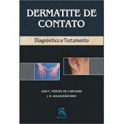 DERMATITE  DE CONTATO DIAGNÓSTICO