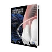 periodontologia e implantodontia soluções estéticas e recursos clínicos