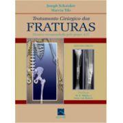 Tratamento Cirúrgico das Fraturas