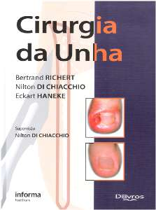 CIRURGIA DA UNHA