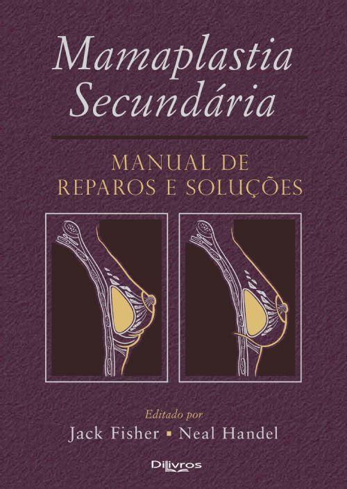 MAMAPLASTIA SECUNDARIA MANUAL DE REPAROS E SOLUÇÕES