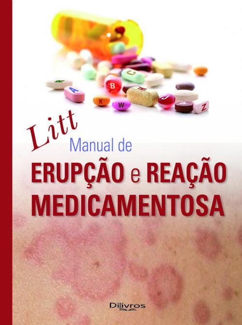 MANUAL DE ERUPÇÃO E REAÇÃO MEDICAMENTOSA