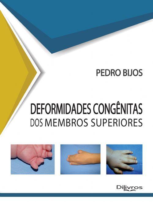 DEFORMIDADES CONGENITAS DOS MEMBROS SUPERIORES