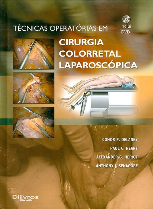 TECNICAS OPERATORIAS EM CIRURGIA COLORRETAL LAPAROSCOPICA