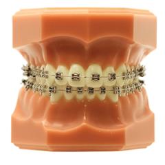 Integra  - N&F Ortho Dental
