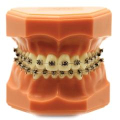 Synergy R  - N&F Ortho Dental