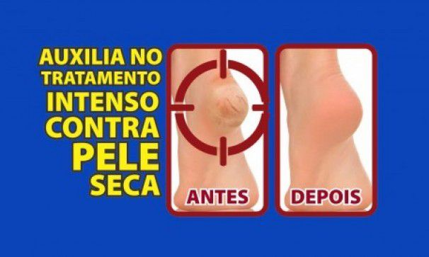 Protetor para Calcanhar Revita Skin 6 em 1- Ortho Pauher