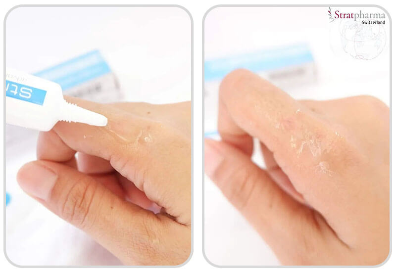 Aplicação Stratamed Gel de Silicone para tratamento de cicatrizes em peles lesadas