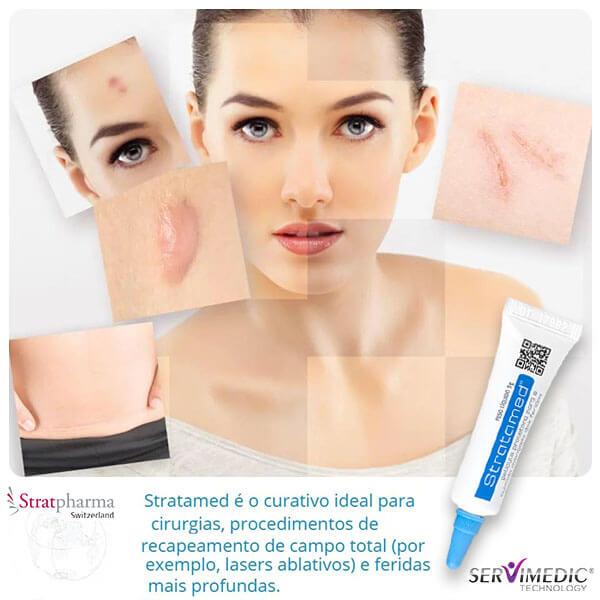 Stratamed Gel de Silicone para tratamento de cicatrizes em peles lesadas