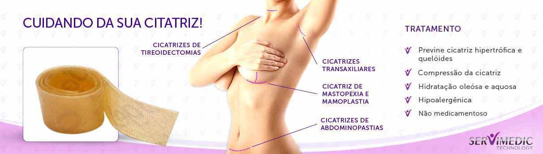fita_de_silicone_para_cicatriz_de_parto_cesarea_60x3cm__Infografico