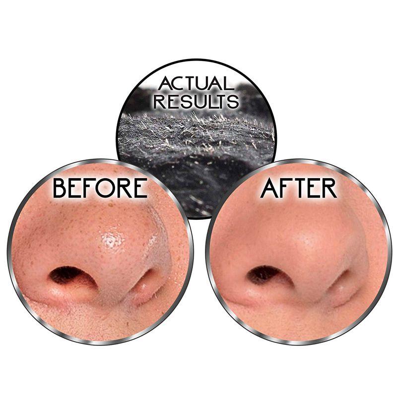 Máscara Limpeza Facial Remove Cravo Espinha 82 ml  - Mundo Thata