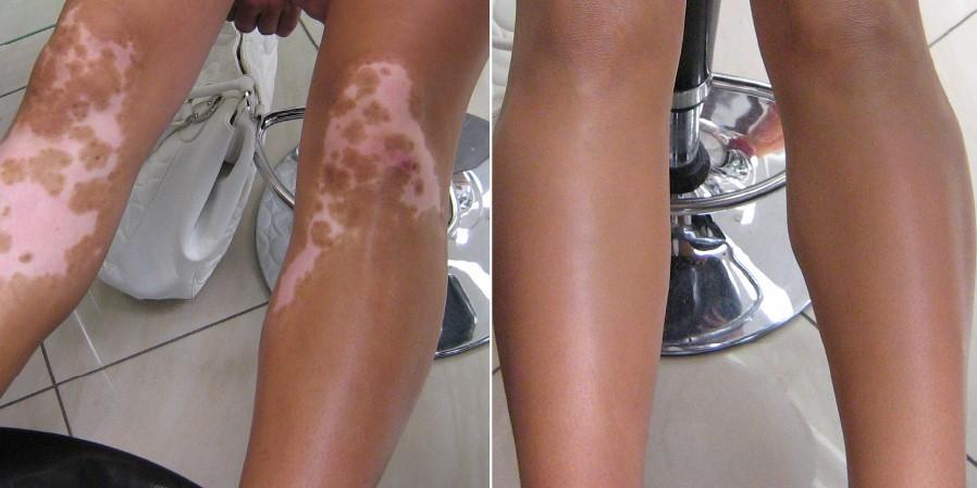 Covermark Leg Magic - 7ml
