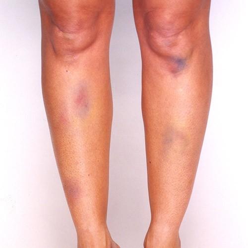 Covermark Leg Magic - Refil