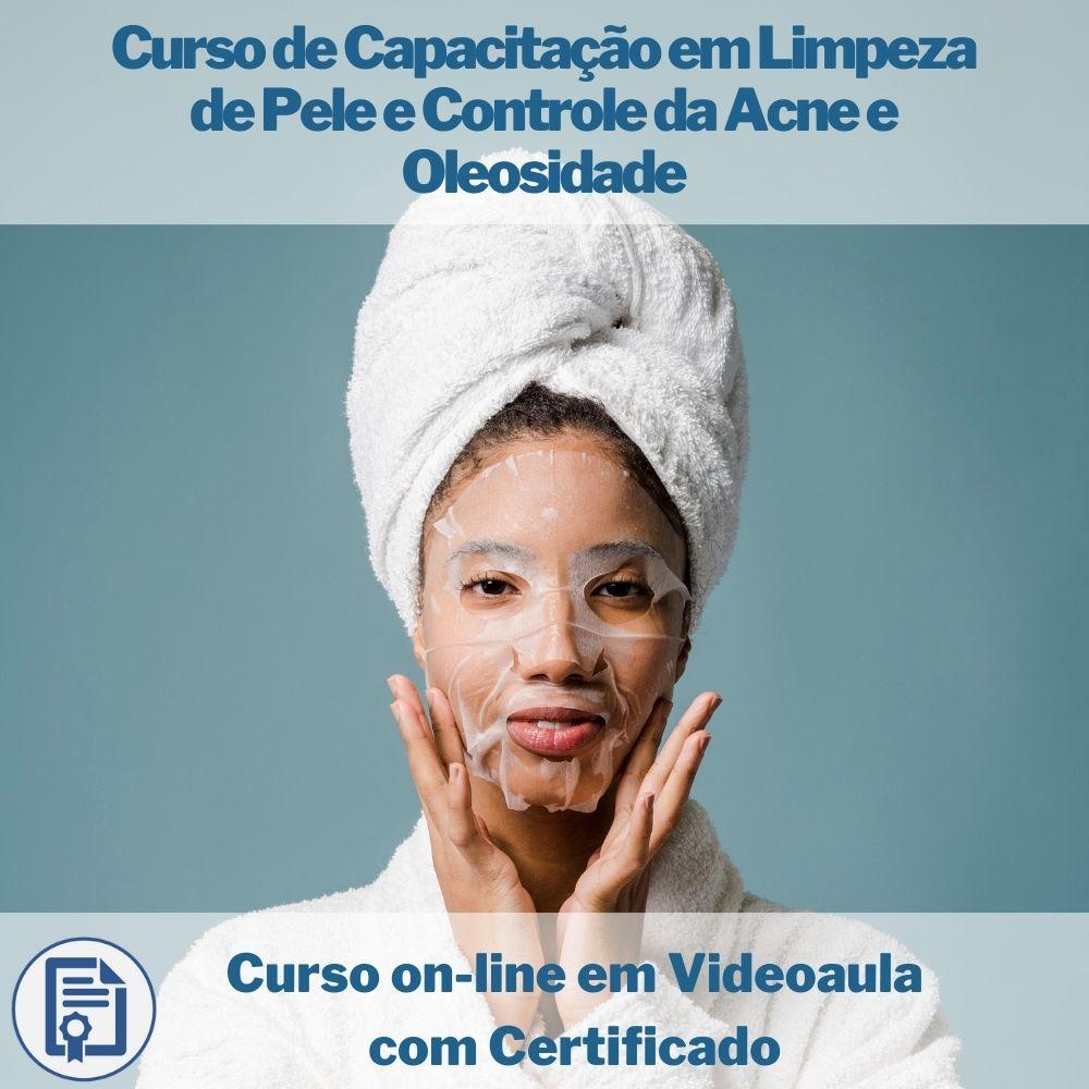 Curso on-line em videoaula de Capacitação em Limpeza de Pele e Controle da Acne e Oleosidade com Certificado