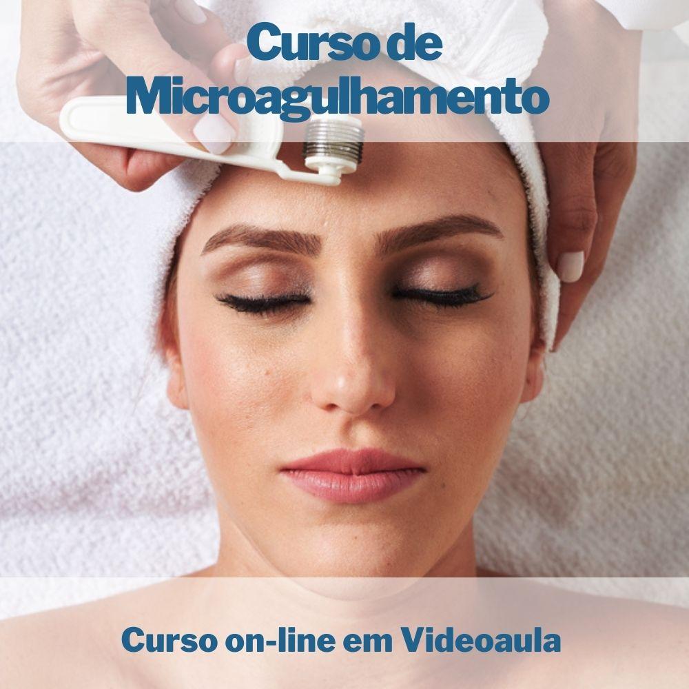 Curso on-line em videoaula de Microagulhamento