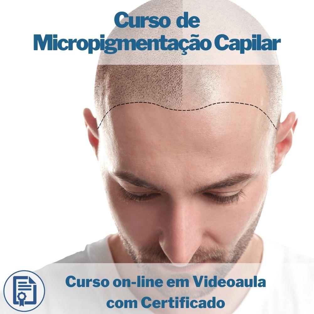 Curso on-line em videoaula de Micropigmentação Capilar com Certificado  - Aprova Cursos