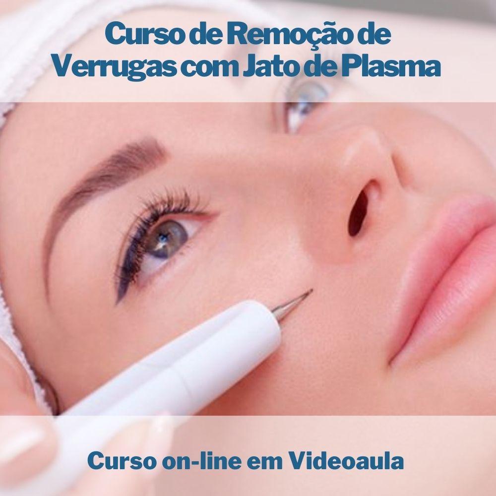 Curso on-line em videoaula Remoção de Verrugas com Jato de Plasma