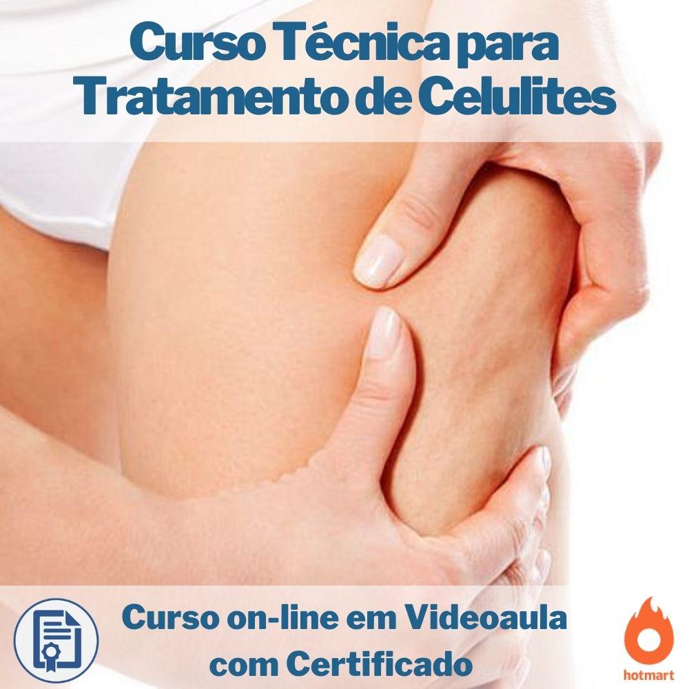 Curso on-line em videoaula de Técnica para Tratamento de Celulites com Certificado