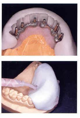 ZETALABOR ZHERMACK  - Dental Curitibana