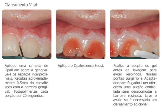 OPALESCENCE BOOST  HIDROGENIO 38% SER.  - Dental Curitibana