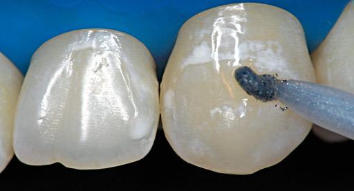 WHITENESS REMOVEDOR MANCHA  - Dental Curitibana