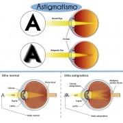 Lentes para oculos Especial para Astigmatismo Cilíndrico alto até -3,50 a c/ Antirreflexo