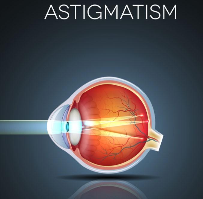 Lente para oculos Esférico Especial para Astigmatismo Cr1.56 Cilíndrico alto até -6,00 c/ Antirreflexo