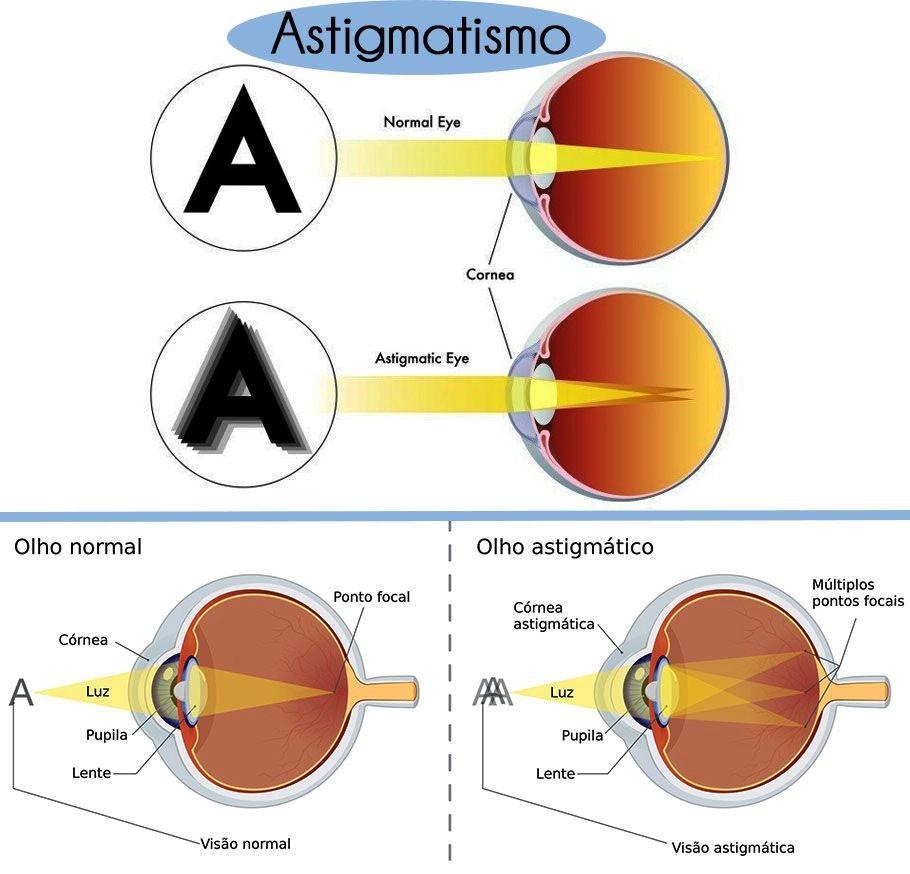 Lente para oculos Esférico Especial para Astigmatismo Cilíndrico alto até -4,00 a c/ Antirreflexo