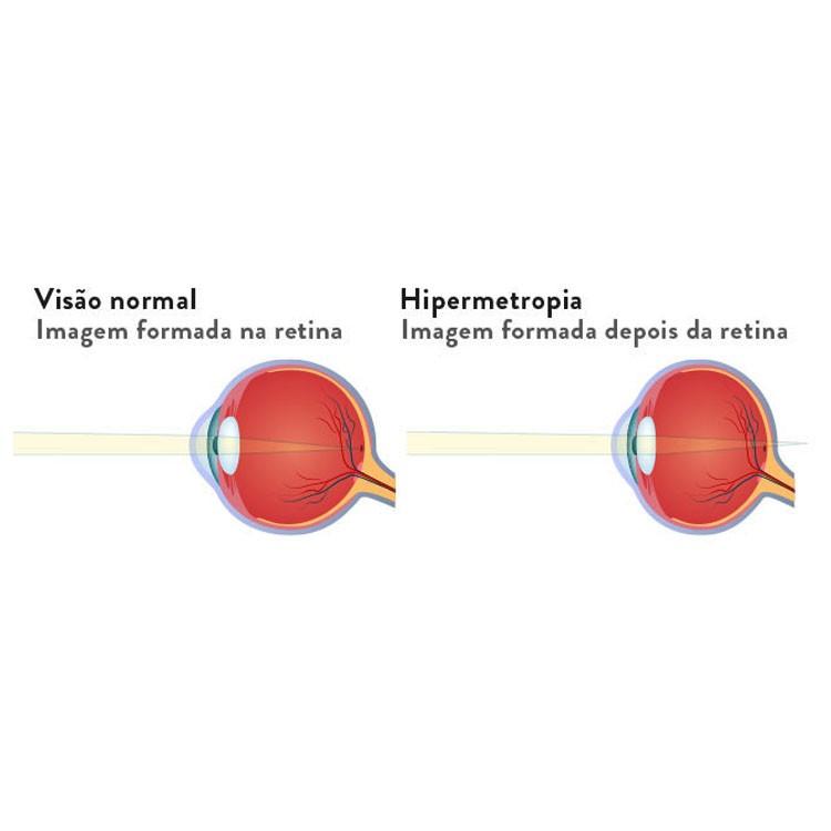 Lentes para óculos Especial esférica Grau alta Hipermetropia c/ antirreflexo até +6,00 CR1.56