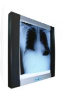 Negatoscópio de LED para Mamografia JD-01R - MD
