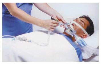 Sistema Fechado de Aspiração Traqueal Bioteque 81MDI - NewMed